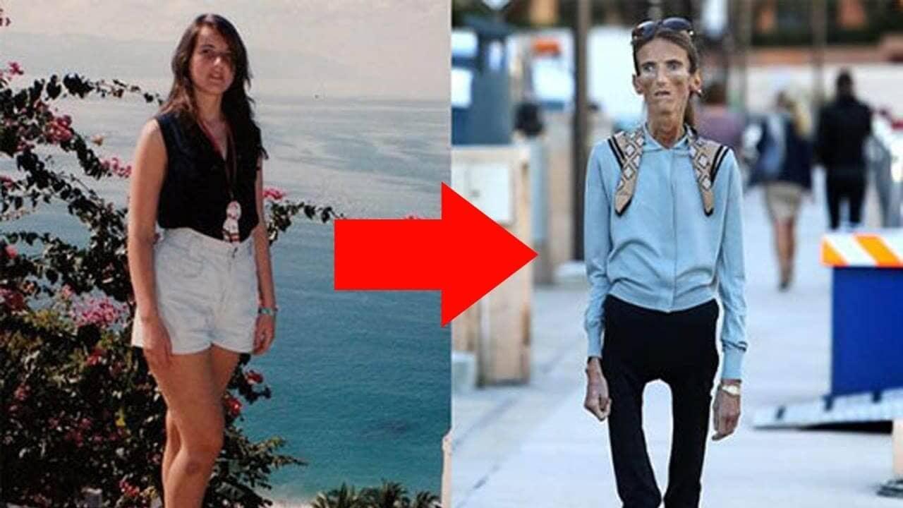 Топ 10 самых худых в мире людей